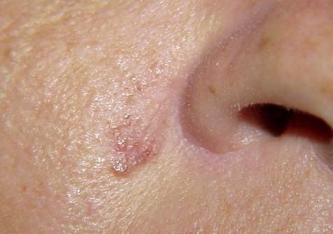 480460 carcinoma basocelular 1 Câncer de pele: tipos, sintomas
