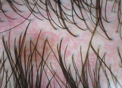 481731 Coceira no couro cabeludo como tratar.2 Coceira no couro cabeludo: como tratar
