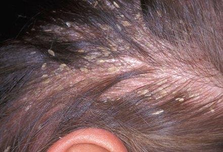 481731 Coceira no couro cabeludo como tratar.3 Coceira no couro cabeludo: como tratar