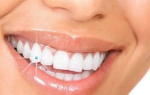 Piercing Dental - Fotos Preços Onde Comprar