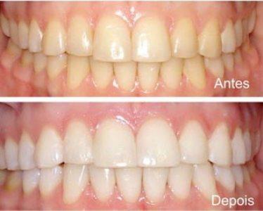 487268 O clareamento dental é uma ótima opção quando feito por um profissional especializado Clareamento dental: riscos