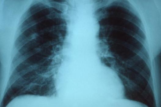 489527 Exame raio x preço popular radiologia mais barato 1 Exame raio x preço popular, radiologia mais barato