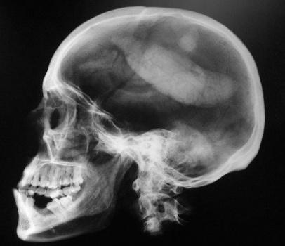 489527 Exame raio x preço popular radiologia mais barato 2 Exame raio x preço popular, radiologia mais barato