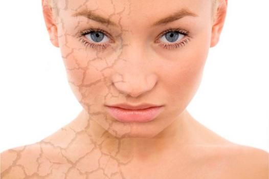 490489 A pele ressecada necessita de cuidados especiais. Hidratante caseiro contra pele ressacada