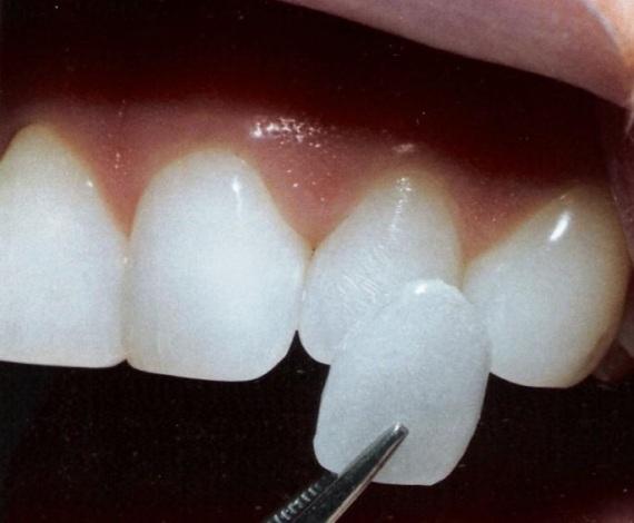 492614 A lente de contato é uma película de porcelana aplicada sobre o dente. Lente de contato para dentes, preço