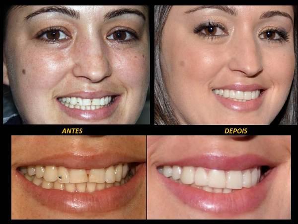 492614 Os resultados são super satisfatórios. Lente de contato para dentes, preço