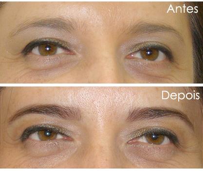 493729 A diferença antes e depois do procedimento é considerável. Sobrancelha de henna, preço, quanto tempo dura