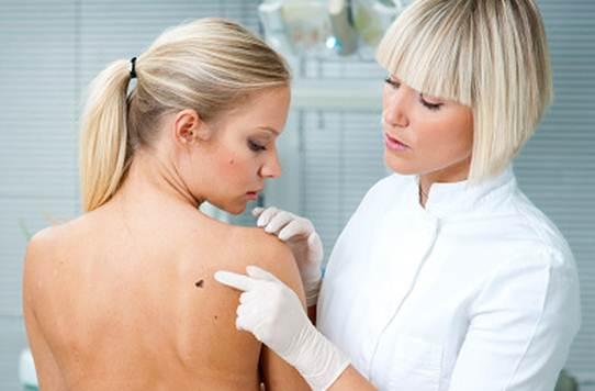 493810 Busque a orienta%C3%A7%C3%A3o de um dermatologista caso o problema das manchas piore. Creme caseiro para tirar manchas da pele