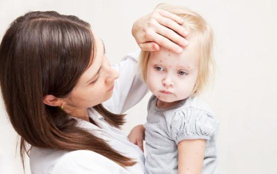 499058 A amigdalite pode manifestar febre. Dor de garganta: dicas para tratar