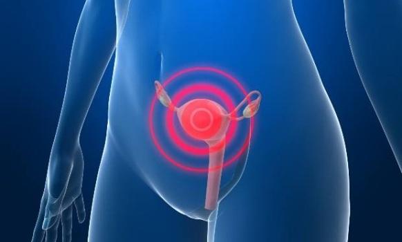 499308 Câncer de colo de útero é a segunda doença que mais mata mulheres no Brasil 2 Câncer de colo de útero é a segunda doença que mais mata mulheres no Brasil