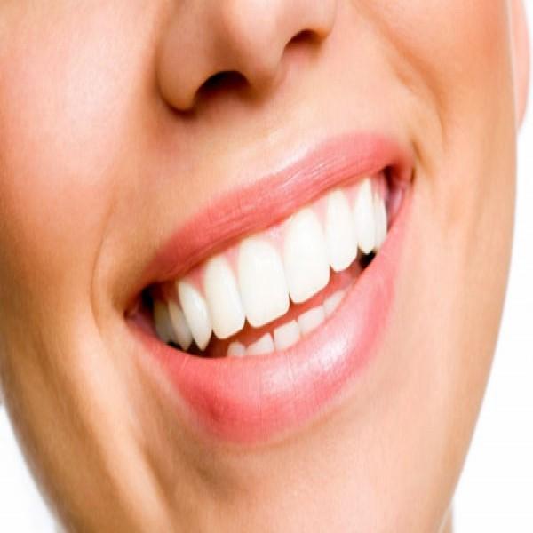 49989 sorriso tratamento de canal 600x600 Tratamento de Canal Preços