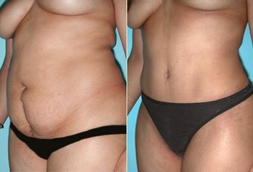 502080 Os resultados da abdominoplastia são rápidos e muito satisfatórios. Cirurgia de abdominoplastia: onde fazer