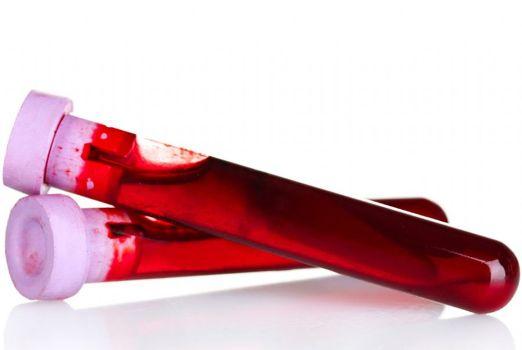 502898 Sangue tipo O é associado ao menor risco de ataque cardíaco diz pesquisa 2 Sangue tipo O é associado ao menor risco de ataque cardíaco, diz pesquisa
