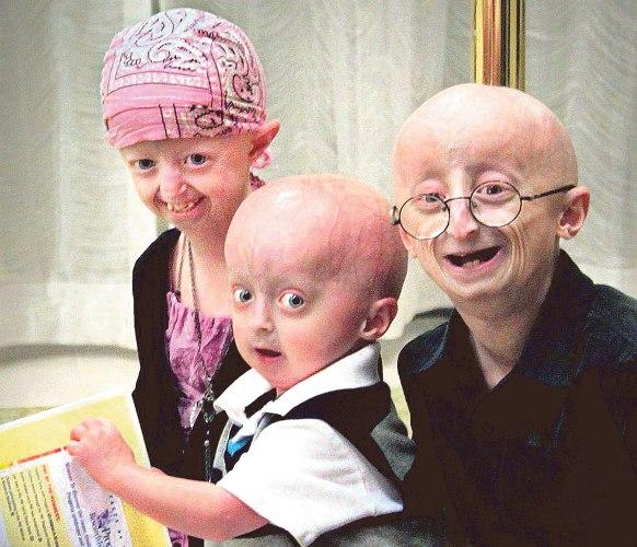 506227 A sindrome de progeria afeta 1 em cada 8 milhões de nascimentos. Síndrome de Progeria: o que é, sintomas