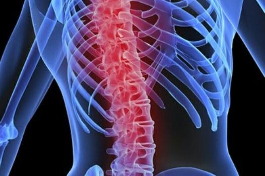 529739 Uma em cada três mulheres tem osteoporose no mundo Uma em cada três mulheres tem osteoporose no mundo
