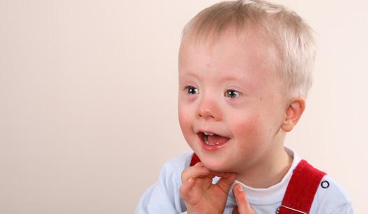 534036 Os bebês com síndroem de Down necessitam de maior estímulo motor. Foto divulgação Bebês com síndrome de down: como estimular