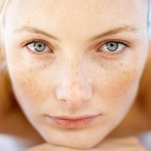 537771 Maquiagem para disfarçar manchas de pele dicas.2 Maquiagem para disfarçar manchas na pele: dicas