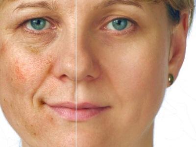 537771 Maquiagem para disfarçar manchas de pele dicas.3 Maquiagem para disfarçar manchas na pele: dicas