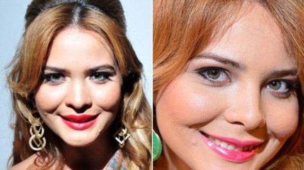 546745 Geisy Arruda antes e depois das plásticas – fotos 1 Geisy Arruda: antes e depois das plásticas   fotos