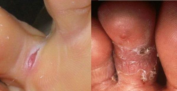 554622 A área mais acometida é a intertriginosa. Micose nos pés: como tratar