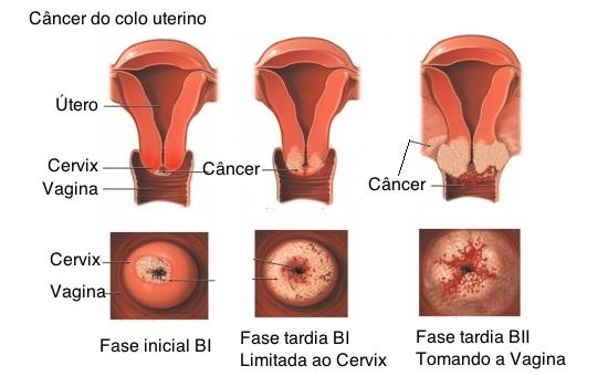 562208 A evolução do câncer de colo de útero também chamado de cervical. Exame Papanicolau: como funciona, importância