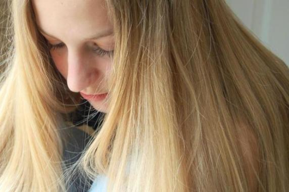 564312 A queda de cabelo pode indicar a falta de nutrientes no organismo. Foto divulgação Falta de nutrientes no organismo: quais são os sinais