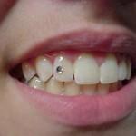 575630 Piercing na boca modelos dicas 11 150x150 Piercing na boca: modelos, dicas