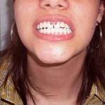 575630 Piercing na boca modelos dicas 8 150x150 Piercing na boca: modelos, dicas