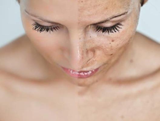 577350 As manchas na pele são causadas por vários fatores. Foto divulgação Diferentes causas das manchas de pele