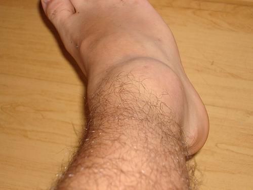 579262 A torção do tornozelo pode gerar muita dor e desconforto. Foto divulgação Torção do tornozelo: como tratar