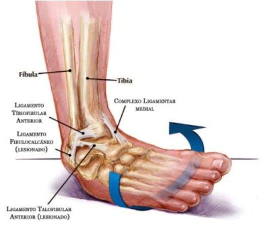 579262 Procure o médico para melhor avaliação do caso. Foto divulgação Torção do tornozelo: como tratar