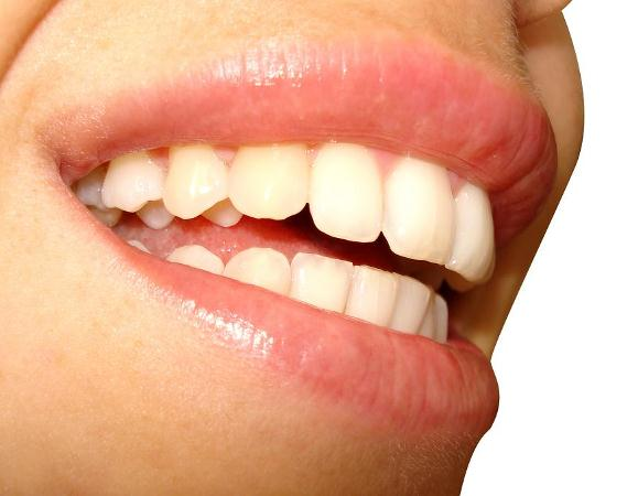 580318 Secundo pesquisas recentes as bebidas energéticas lesam o esmalte do dente. Energético prejudica os dentes