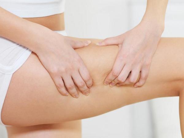 581404 Muitas mulheres deixam de monstrar as pernas por vergonha dos furinhos. Maquiagem para disfarçar celulite: passo a passo