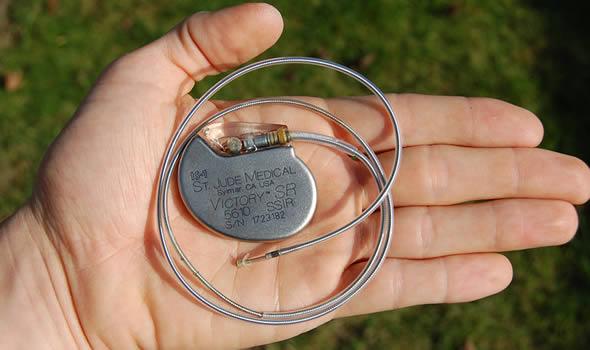 582498 O marcapasso é muito utilizado para ajudar os corações fracos. Foto divulgação Marca passo: para que serve?