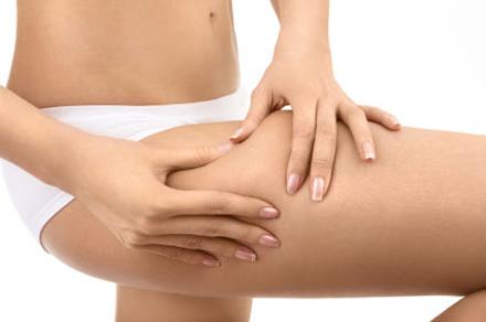 585717 A celulite é um problema que incomoda as mulheres de maneira geral. Foto divulgação Mitos e verdades sobre celulite
