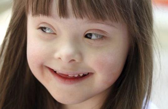 598699 21 de março dia internacional da Síndrome de Down 1 Dia internacional da Síndrome de Down: 21 de março