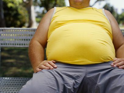 608536 Os países com maiores índices de obesidade do mundo Os países com os maiores índices de obesidade do mundo