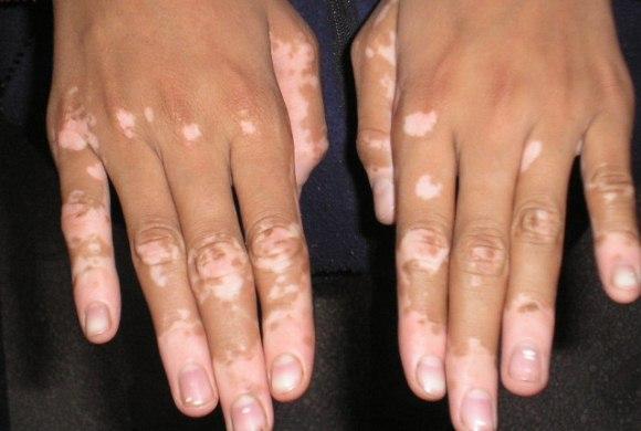608696 O vitiligo é uma doença de pele que causa manchas brancas. Foto divulgação Tratamento gratuito para Vitiligo, onde fazer
