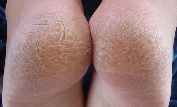610293 As rachaduras e fissuras são os problemas mais frequentes que acometem os pés. Rachaduras nos pés, causas e tratamentos