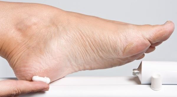 610293 Cremes emolientes específicos para os pés podem ajudar. Rachaduras nos pés, causas e tratamentos