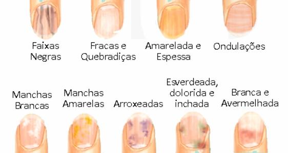 610316 Principais alterações das unhas. Problemas de saúde indicados pelas unhas