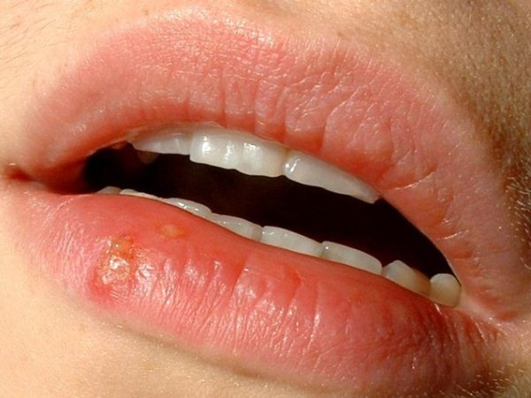 613983 A herpes geralmente afeta a região labial e é precedida de dor e prurido intenso. Feridas na boca: como tratar