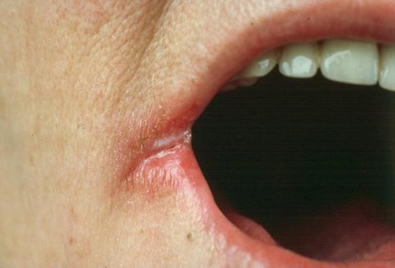 614509 A boqueira causa fissura no canto da boca e muita dor. Foto divulgação Tratamento caseiro para boqueira