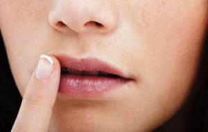 Tratamento caseiro para boqueira
