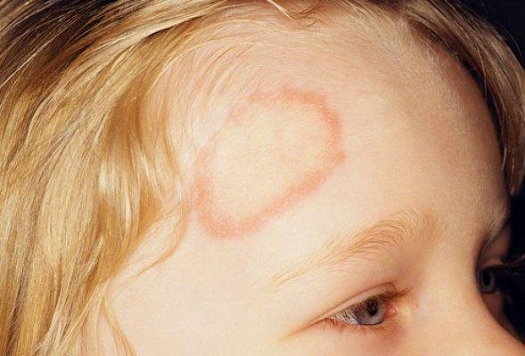 615075 A impinge é uma doença de pele contagiosa. Foto divulgação Tratamento caseiro para Impinge
