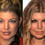 624640 Celebridades antes e depois da plástica fotos 1 150x150 Celebridades antes e depois da plástica: fotos