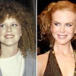 624640 Celebridades antes e depois da plástica fotos 10 150x150 Celebridades antes e depois da plástica: fotos
