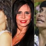 624640 Celebridades antes e depois da plástica fotos 19 150x150 Celebridades antes e depois da plástica: fotos