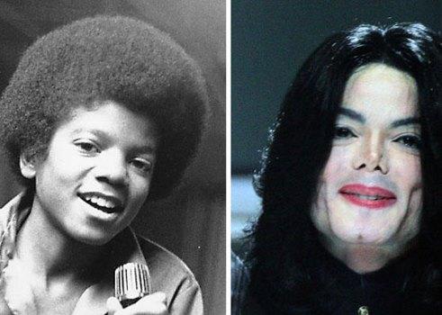 624640 Celebridades antes e depois da plástica fotos 2 Celebridades antes e depois da plástica: fotos