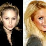 624640 Celebridades antes e depois da plástica fotos 3 150x150 Celebridades antes e depois da plástica: fotos